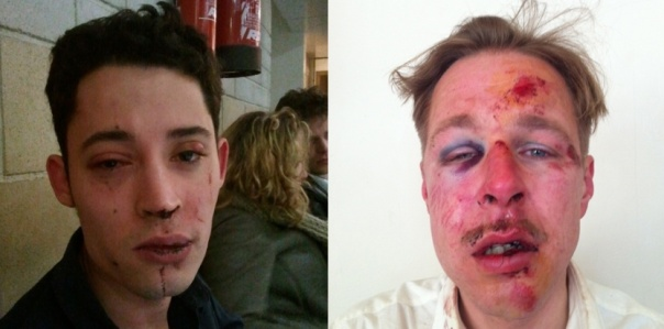 On April 7, 2013 Wilfred de Bruijn and Olivier Couderc, a young homosexual couple living in Paris, were savagely attacked on the street on homophobic grounds as they were going home late at night. Since the newly-elected Socialist Party parliamentary majority had begun examining a bill on same-sex marriage in late 2012, French President François Hollande and his government had faced demonstrations, sometimes violent, by opponents to gay rights who wanted them to drop the bill. The attack on Wilfred and Olivier resulted in national outrage and the opponents to the government-proposed bill were widely blamed for it.  Eventually, on May 17, 2013 the French Parliament went ahead and did pass the law extending the right to marriage to same-sex couples.