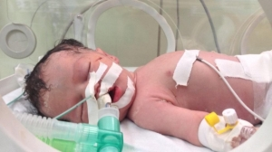 In late July 2014 Gazan doctors saved the life of little Shaima, an unborn child, by extracting her from the womb of her mother who was killed in an Israeli airstrike. Two days later, the Israeli Air Force destroyed the sole existing power plant in Gaza, thus stopping Shaima's life support system and eventually killing the baby too.